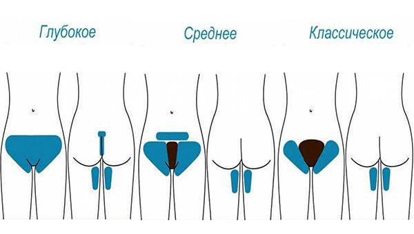 какие зоны входят в процедуру шугаринг среднего бикини